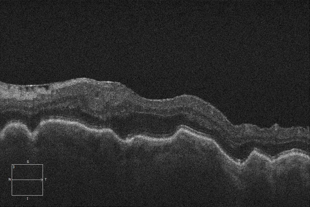 Optical coherence tomography of the left macula shows choroidal folds due to hypotony.