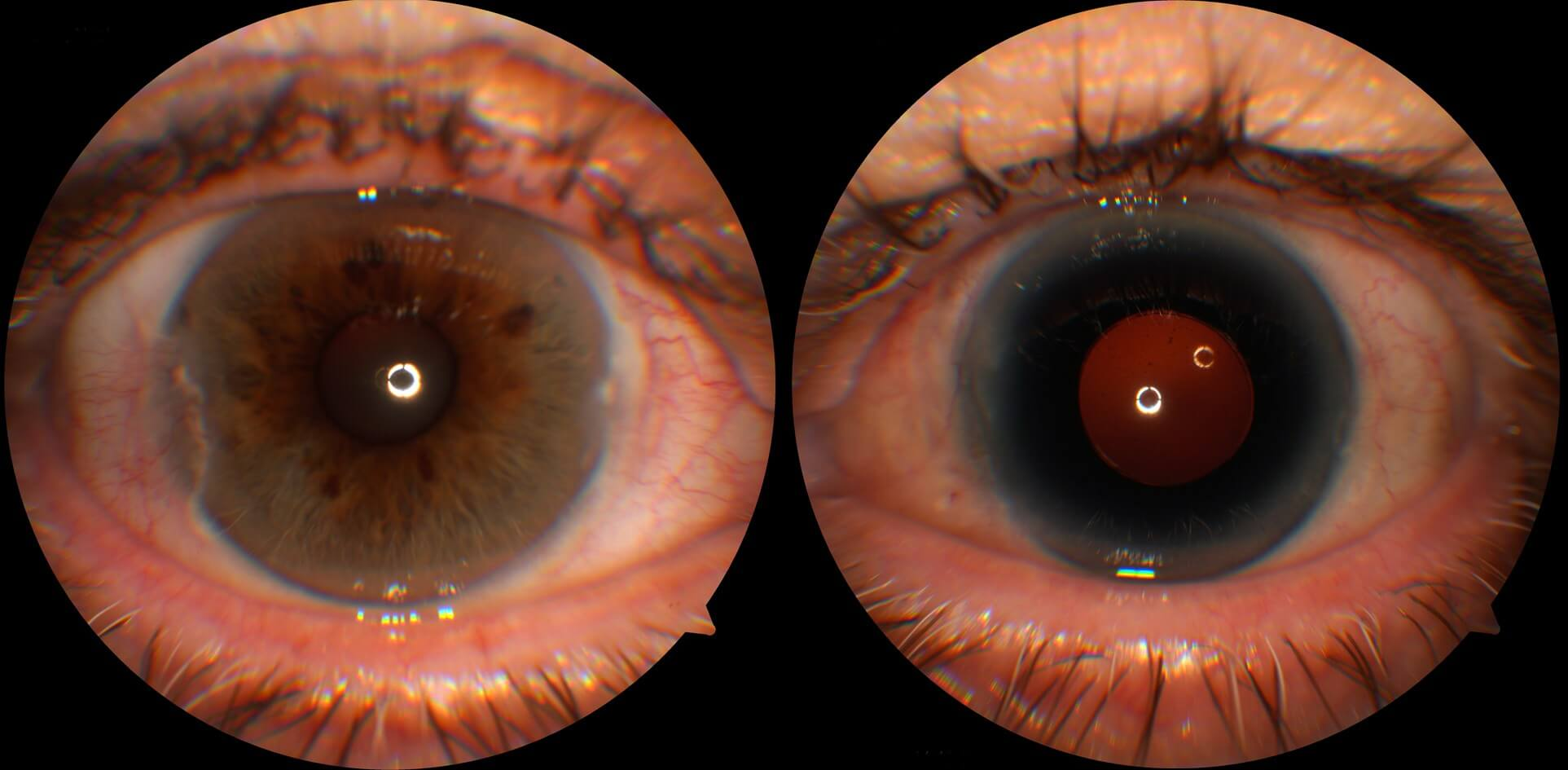 Colour photographs of the right and left eyes. The right eye is normal. The left eye has a Morcher Type 68 Intraocular lens that has been sutured internally to the sclera. This intraocular lens has a prosthetic iris.