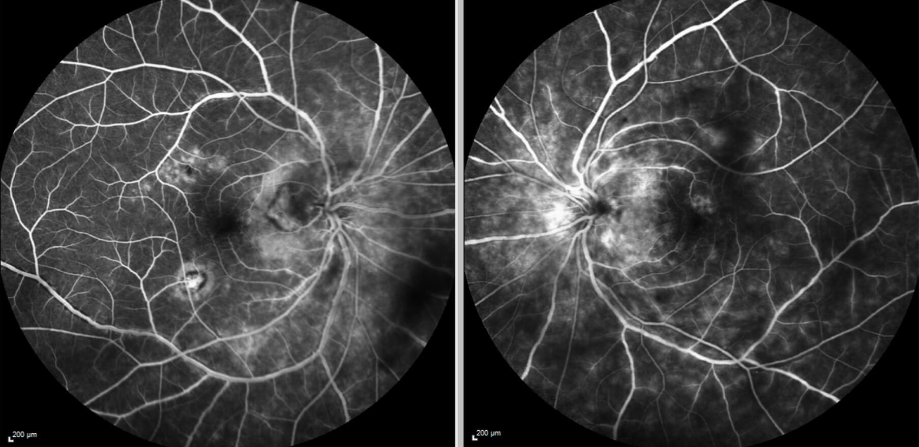 Fundus fluorescein angiography shows bilateral hyperfluorescent vasculitis with irregularity of the retinal vessel calibre, some disc leakage and choroidal neovascular membranes both temporal to the right optic disc and inferotemporal to the fovea.