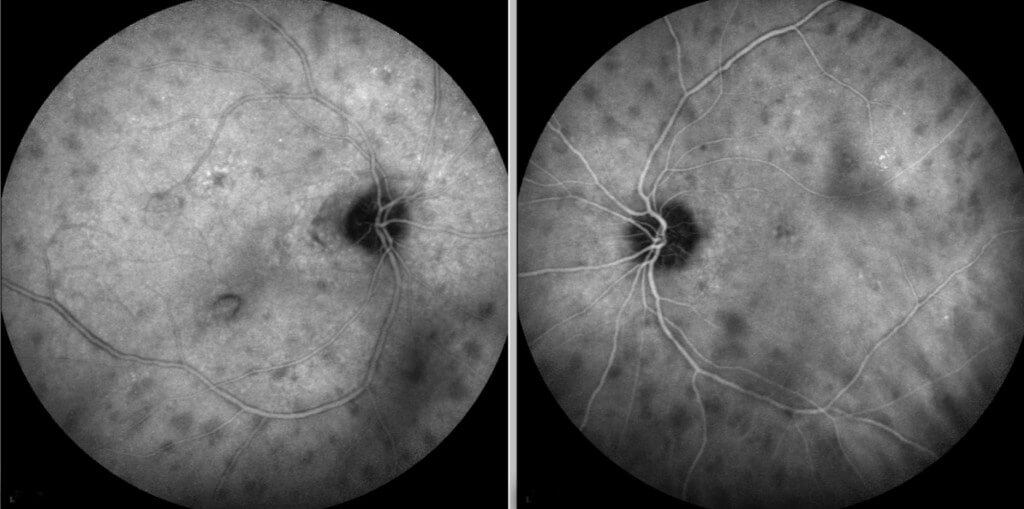 Late phases of indocyanine green angiography shows multiple bilateral hypo-fluorescent choroidal spots.