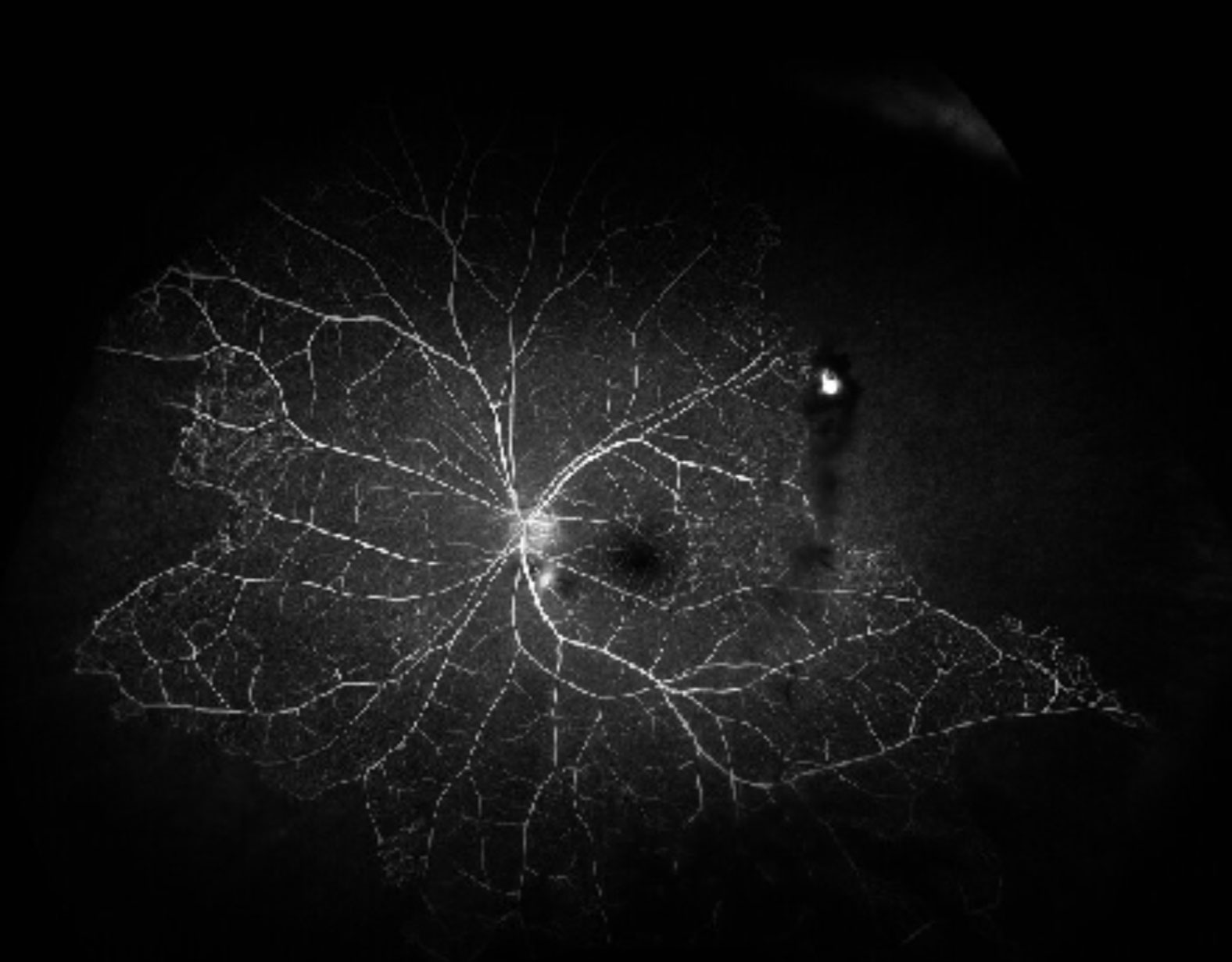 Optical coherence tomography shows multiple bilateral exudative retinal detachments, outer retinal cysts and thickened choroids.
