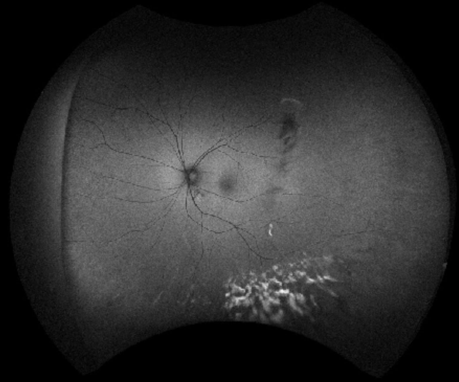 Indocyanine green angiography shows multiple hypofluorescent spots.