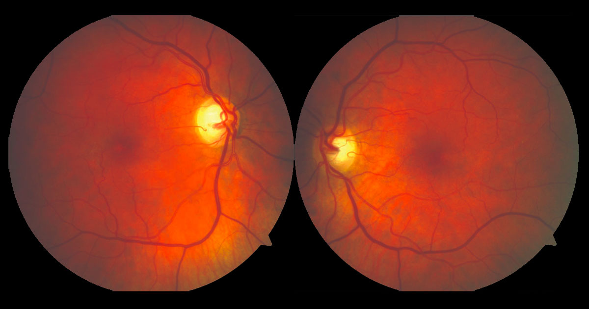 Colour fundus photographs reveal subtle abnormalities temporal to both foveae.