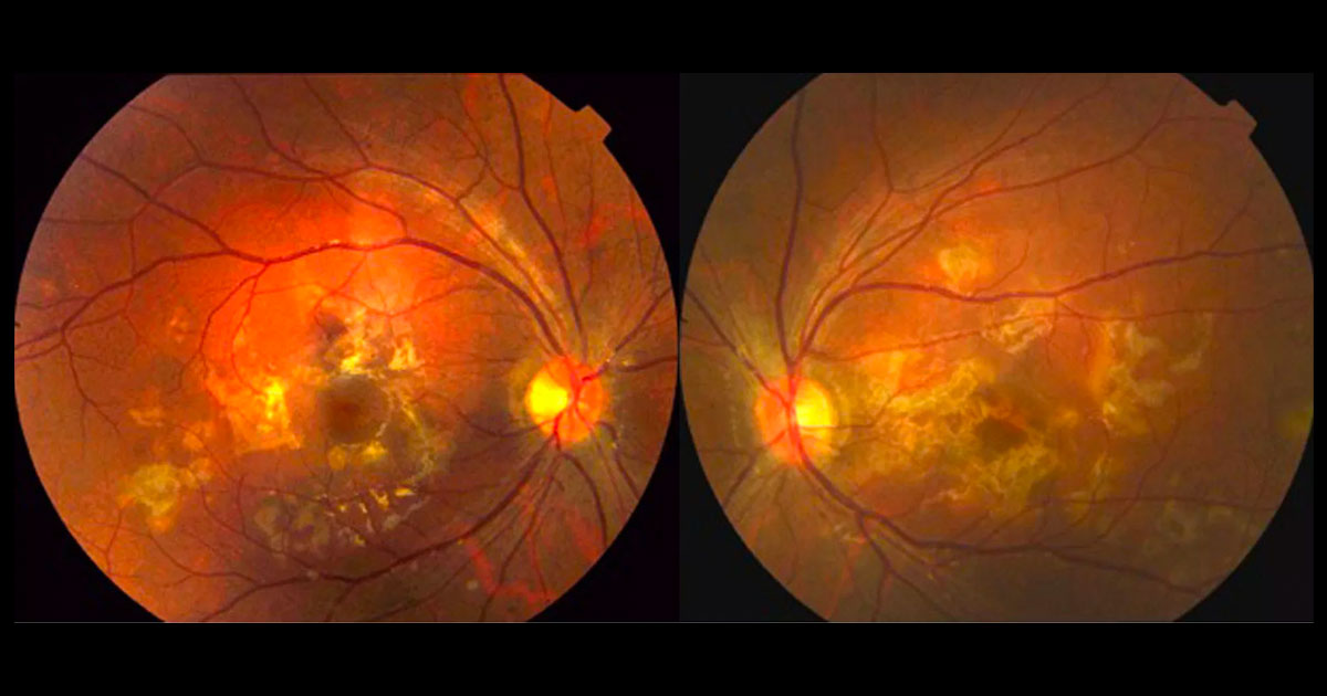 Colour fundus photographs showing multiple yellow-white deep retinal lesions at both posterior poles.