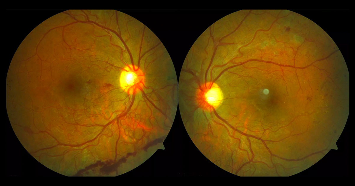 "Colour fundus photographs showing bilateral neovascularization at the optic discs and ""elsewhere"", intraretinal microvascular abnormalities (IRMAs) and microaneurysms. Pre-retinal haemorrhage is seen inferiorly in the right eye and scattered fine hard exudates in the left eye."