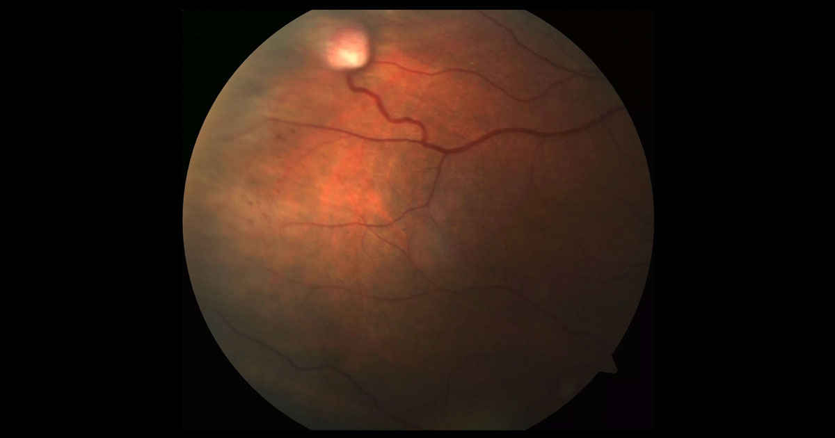Colour fundus photograph of the right eye shows a raised white lesion in the supero-temporal periphery covered with fine vessels. There is a feeder arteriole and a dilated venous draining vessel.