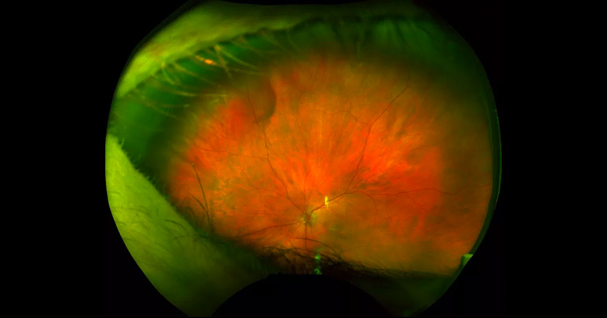 Ultra-wide field colour photograph of the left fundus shows a reddish-brown far peripheral elevation in the superonasal quadrant.