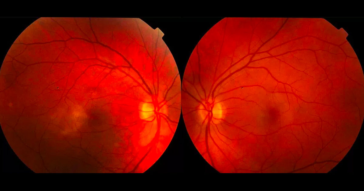 Colour photographs demonstrate alteration of the foveal reflex with loss of transparency temporal to the maculae, more evident in the right eye.