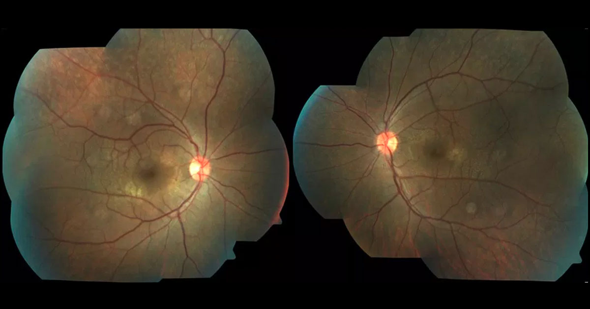 Colour fundus photography demonstrating perimacular flecks at both maculae.
