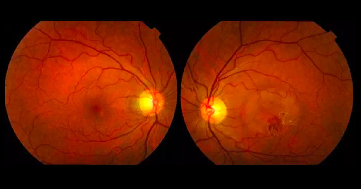 Colour fundus photographs shows a circular area of macular elevation associated with haemorrhage and hard exudate in the left eye.