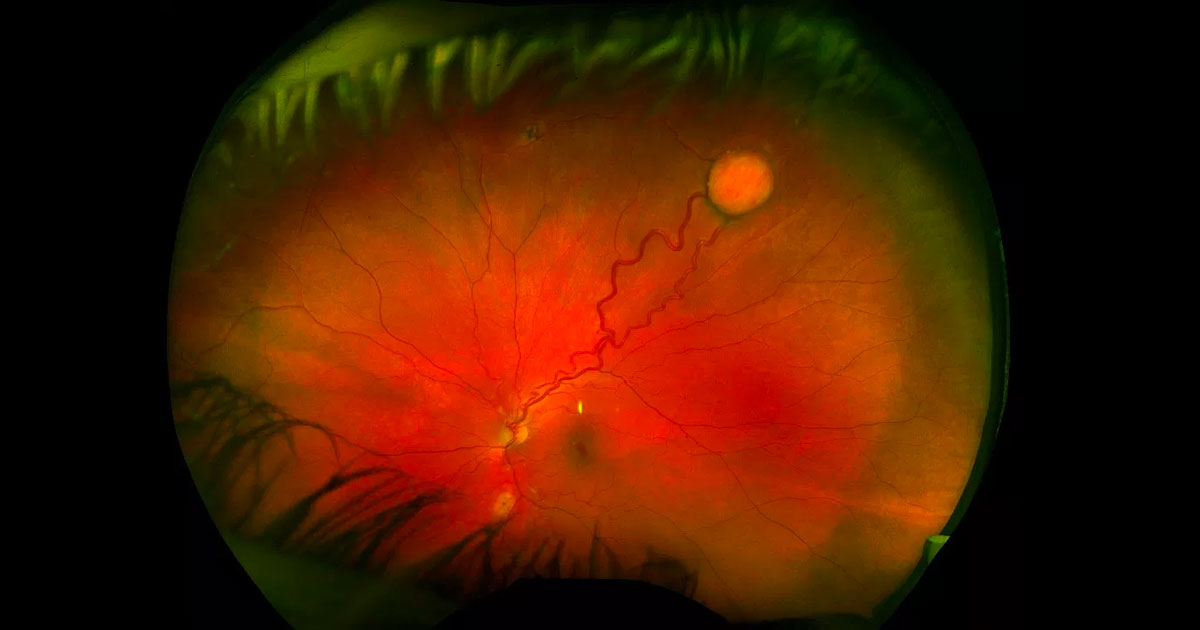 A round yellow-orange retinal lesion is visible in the superotemporal periphery of the left eye. There are dilated retinal vessels entering and exiting it.