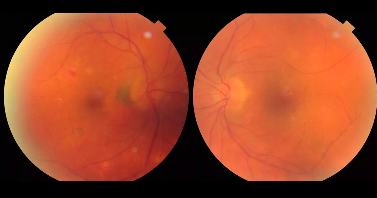 Colour fundus photographs show peripapillary and inferotemporal pigmentary changes in the right eye. There are some retinal pigment epithelial changes at the left macula and irregularity of the retinal vasculature.