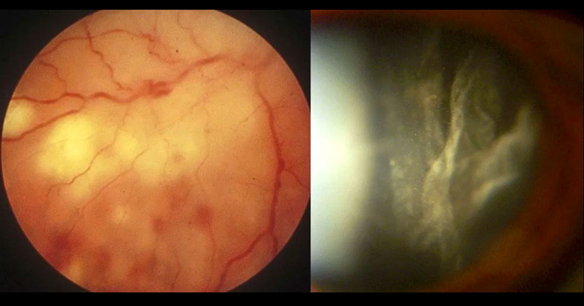Colour fundus photograph of the right eye demonstrates white necrotic retinitis with intraretinal haemorrhages (left image). A moderate vitritis was present (right image).