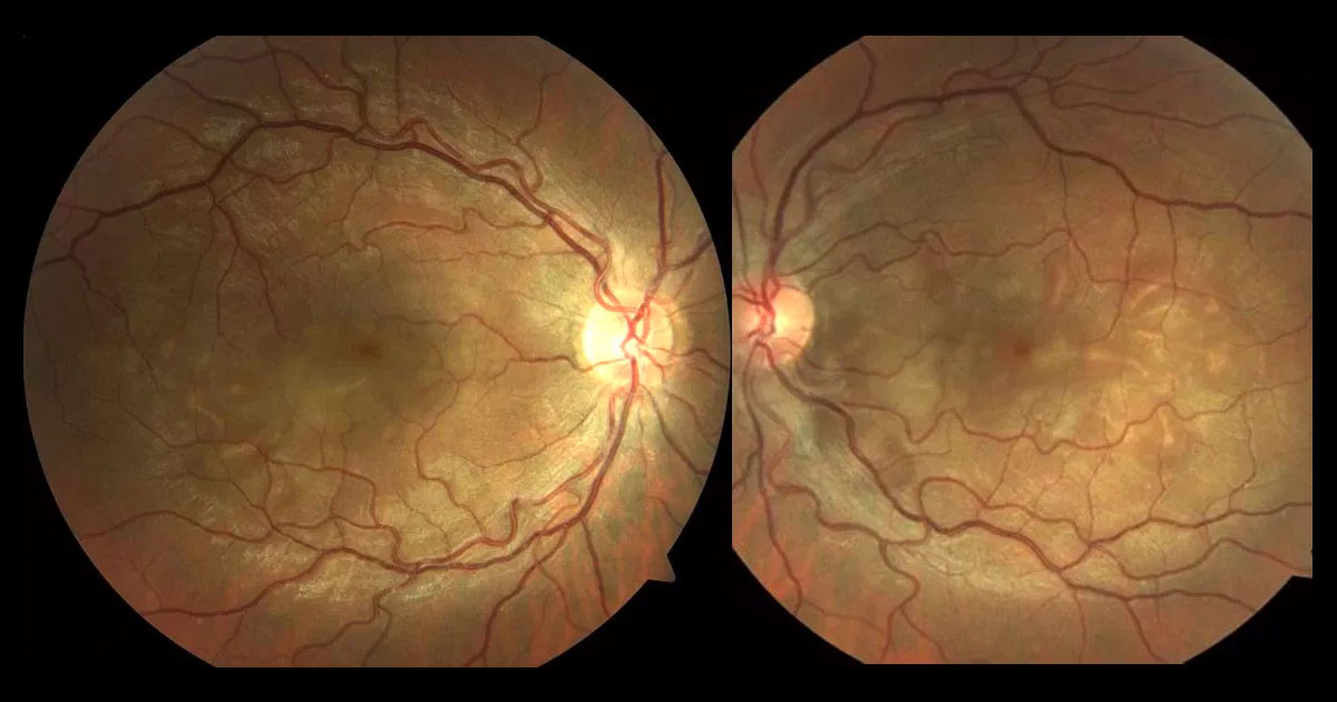 Colour fundus photography shows multiple, bilateral serous retinal detachments. The discs are normal and there is no retinal vasculitis.